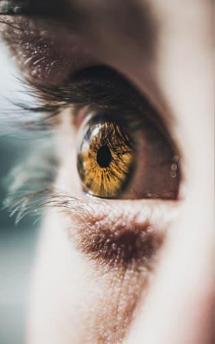 Oko sa žltou šošovkou